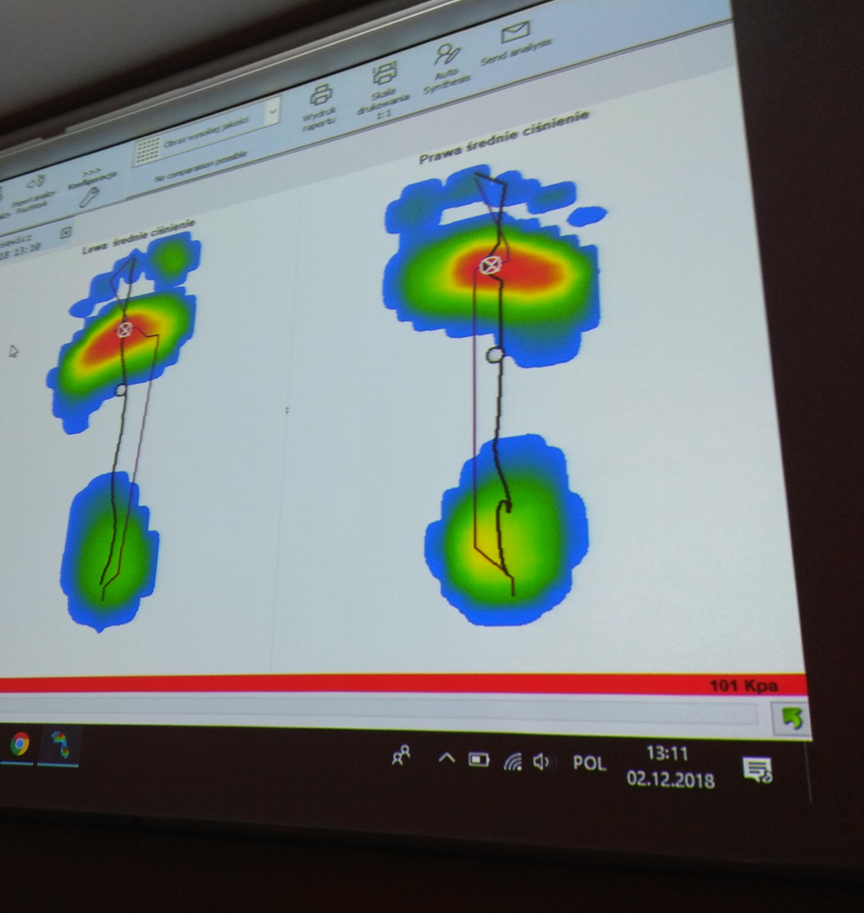 Wielobarwne zdjęcie stóp z komputerowego badania, widoczny kształt stóp i powierzchnia obciążania, wysklepienie łuków oraz ustawienie tyłostopia i osi kończyn.